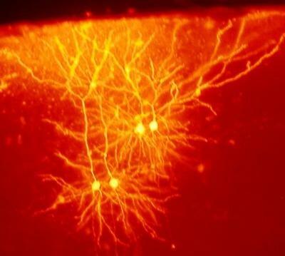 клетки_мозга