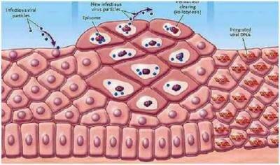 Анализ на вирус папилломы. Что нужно знать?