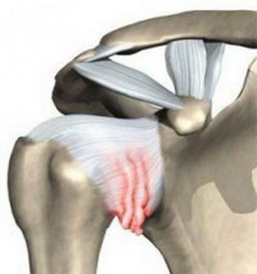 Артрит коленного сустава причины симптомы и лечение