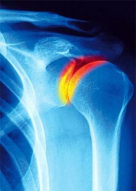 Плечевой артрит - причины и симптомы