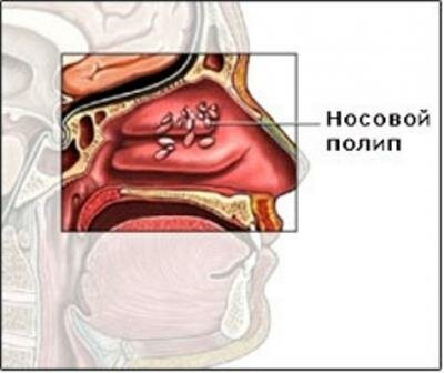 операция при полипах в носу