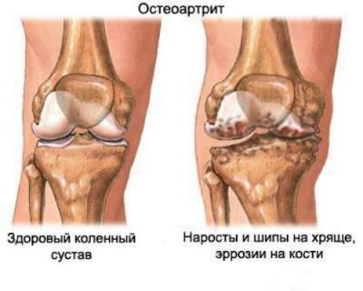 остеоартрит - болезнь суставов