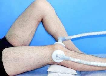 Растяжение связок коленного сустава как и чем лечить в домашних условиях