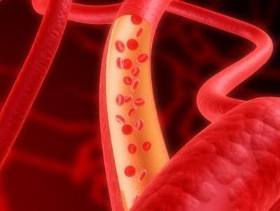 Правильная диагностика атеросклероза