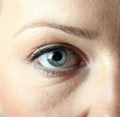 Когда необходим крем от морщин вокруг глаз?