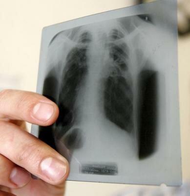 Как определить туберкулез пациенту?