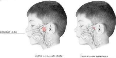 Хронический аденоидит: носовой душ