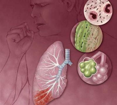 пневмония без температуры