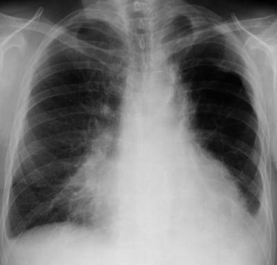 пневмония без температуры 1