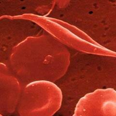 Хроническая анемия