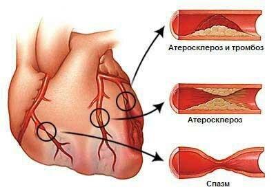 stenokardiy