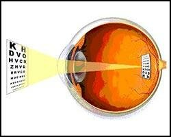 Что такое астигматизм и близорукость
