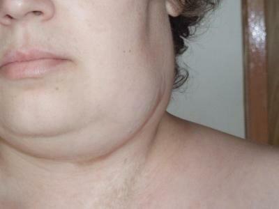 Воспаление лимфоузлов на фото