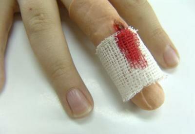 Первая помощь при лечении травм на пальцах