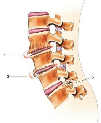 Различные синдромы шейного остеохондроза можно систематизировать