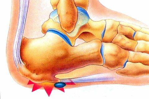 Отложение солей на суставах боль в позво orlett бандаж на коленный сустав