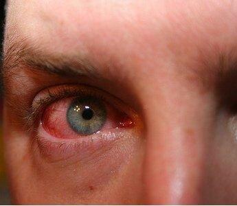 фото мазей от аллергии на коже