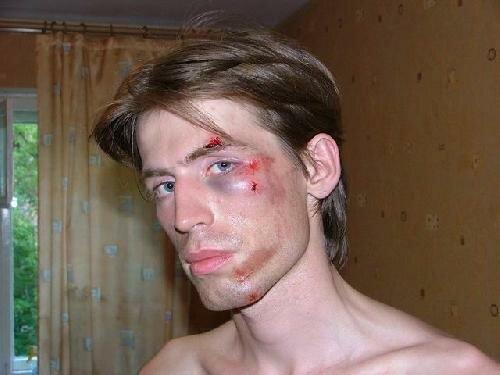 Как лечить отек после ушиба на лице