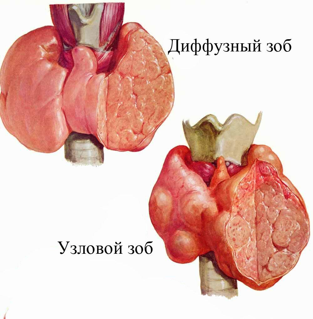 Смотреть Многоузловой зоб щитовидной железы – симптомы видео