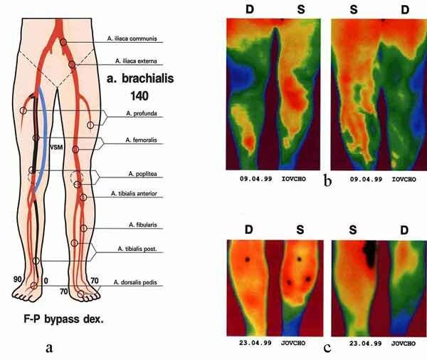 Облитерирующий атеросклероз сосуд головного мозга